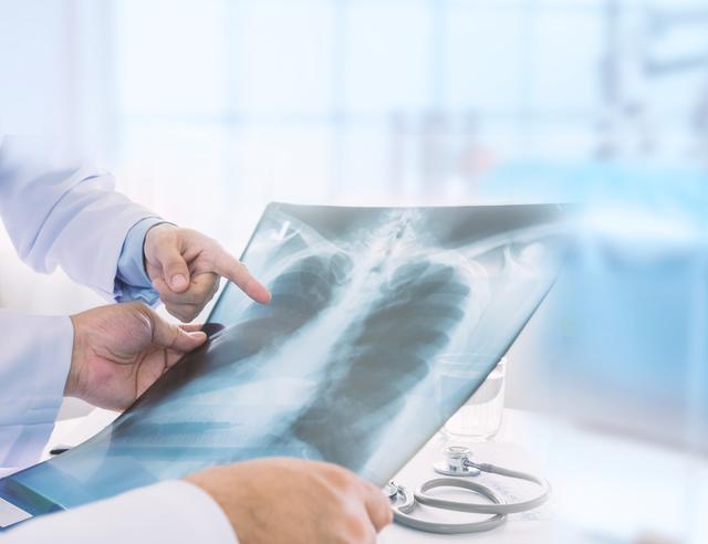 Navigating a Lung Cancer Diagnosis.png